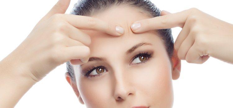El acné afecta a todo tipo de pieles