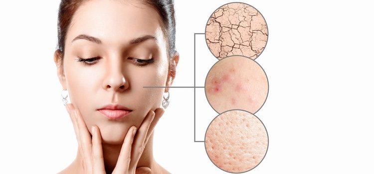 Hay que mantener los poros cerrados para evitar el acné