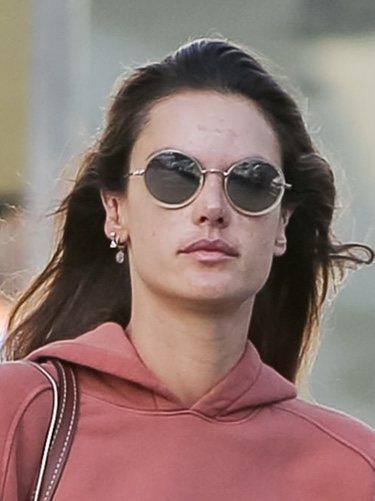 Alessandra Ambrosio con la piel dañada