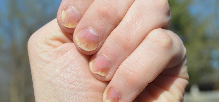 Los esmaltes pueden dañar mucho la salud de las uñas