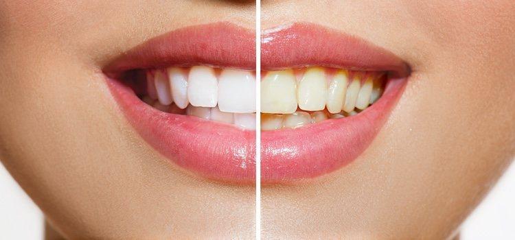 Malos hábitos pueden llevar a los dientes a perder su blancura