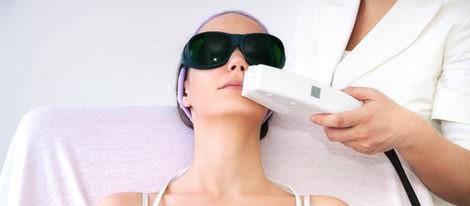 Depilación facial láser