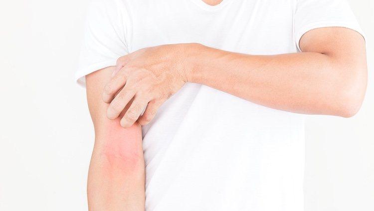 Rostro con dermatitis atópica