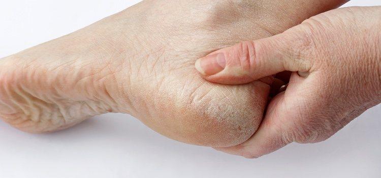 Tratamientos caseros para eliminar las durezas