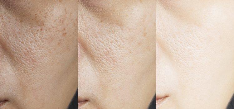 El Bio-Oil ayuda a mejorar el aspecto de las manchas de la piel