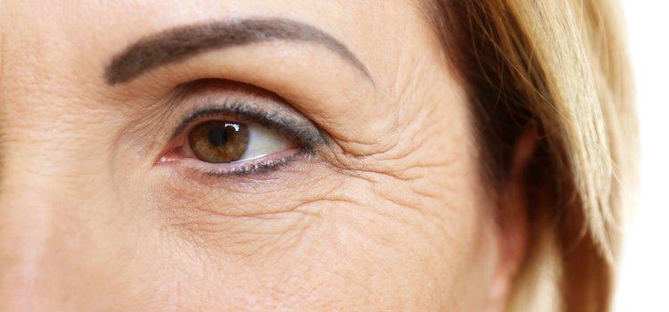Las arrugas se pueden tratar también con cirugía
