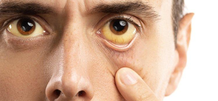 El consumo de estas pastillas puede causar diversos efectos secundarios