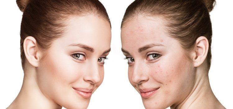Muchos problemas de acné pueden deberse a una mala alimentación