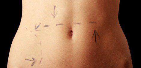 Preparación para una operación de estética en la zona del abdomen