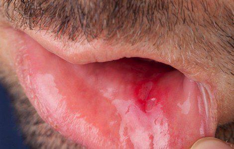 Apariencia de una llaga bucal en el interior del labio