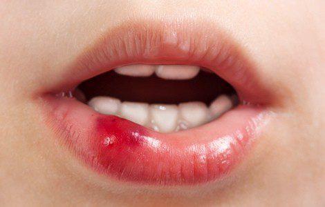 Las llagas en la boca y labios pueden curarse con aloe vera