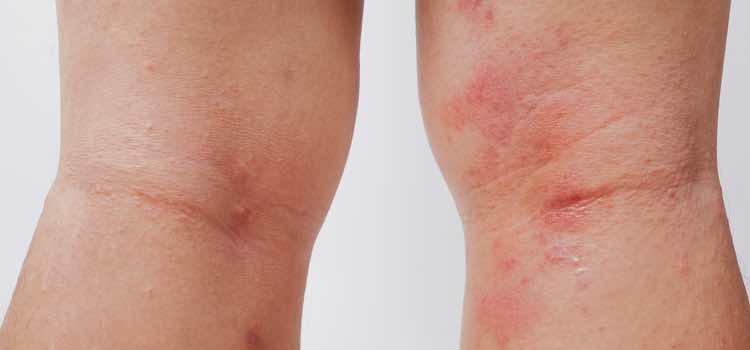 por que salen petequias en las piernas