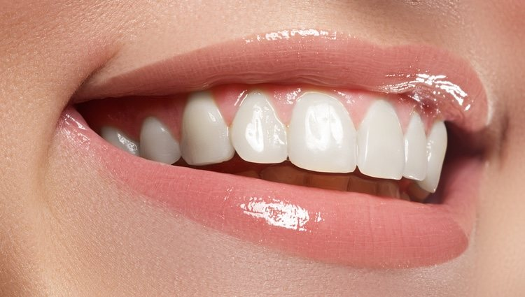 Resultados tras la implantación de las carillas dentales