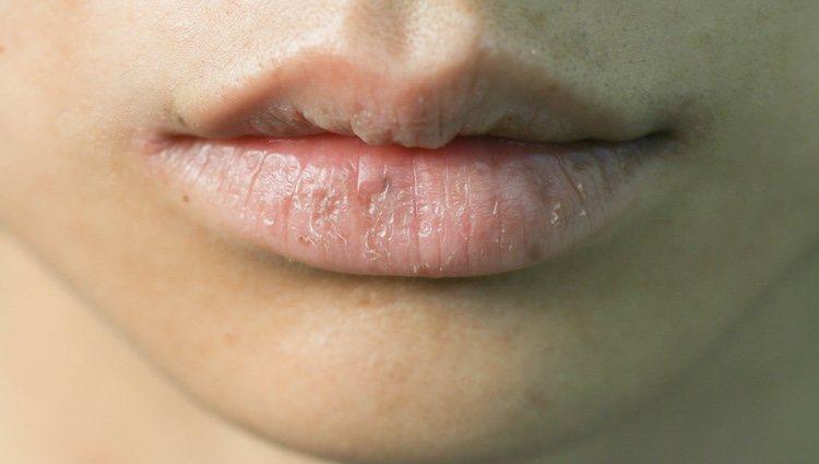 Tener los labios indratados es muy sencillo
