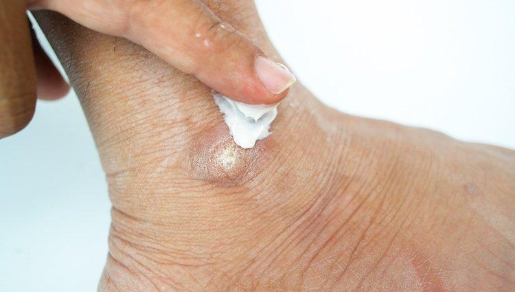 Hay que tener mucho cuidado al aplicar la loción antiverrugas