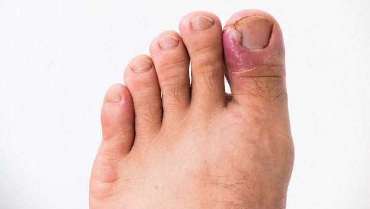 como+quitar+el+dolor+de+dedo+gordo+del+pie