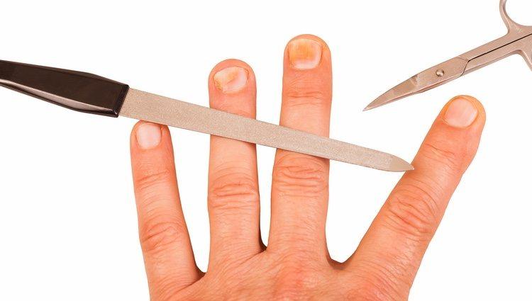 Hay que limar y cortar bien las uñas para evitar que se encarnen