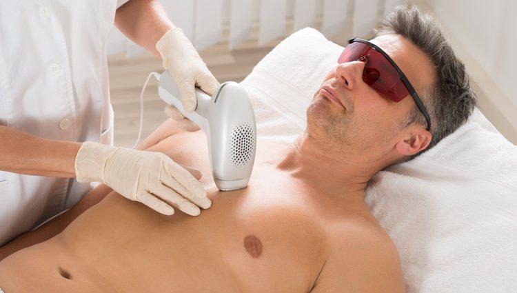 La depilación láser es la mejor técnica para una depilación permanente