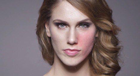 Cassandra Bankson muestra la mitad de su cara con acné