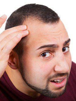 Mitos y realidades sobre la calvicie masculina