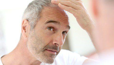 Te decimos cómo luchar contra la alopecia