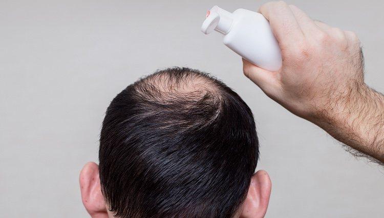 Existen lociones y champús contra la alopecia