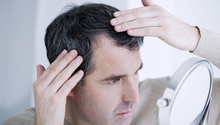 Existen tratamientos estéticos para paliar la alopecia
