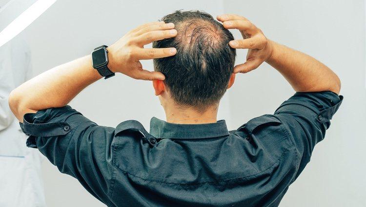 Hay que identificar correctamente el tipo de alopecia para poder tratarla
