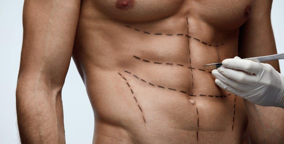 Operaciones estéticas en hombres, ¿qué me opero?