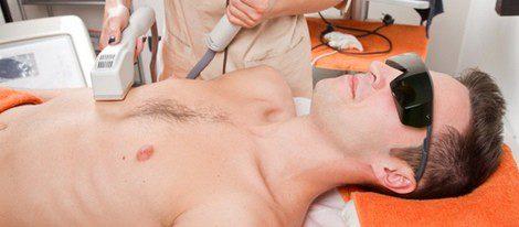 Los hombres también utilizan la depilación laser para eliminar el bello