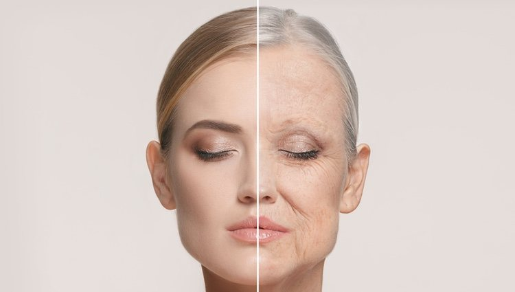 Con el lifting se pueden eliminar las antiestéticas arrugas