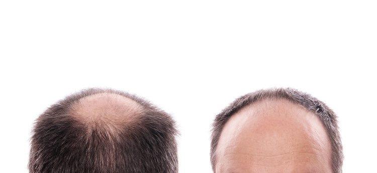 ¿En qué consiste el injerto de pelo?