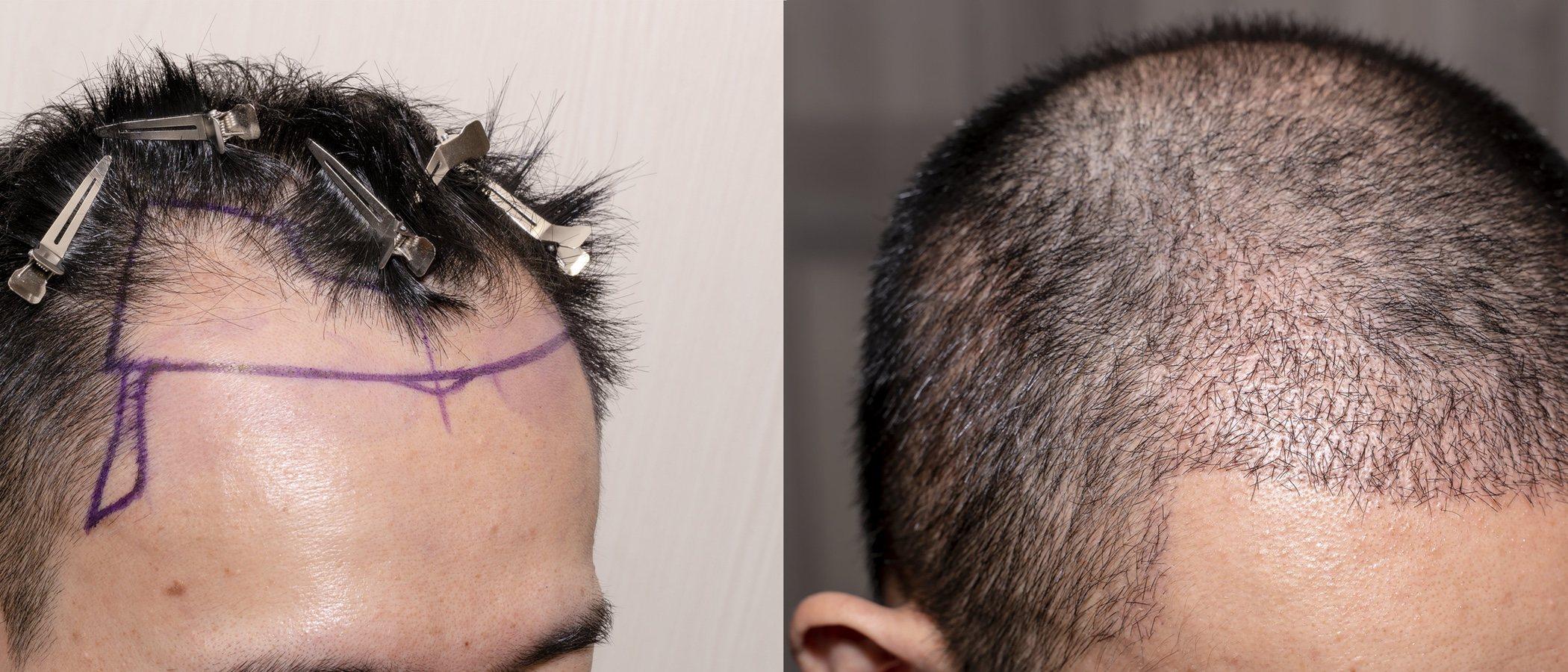¿Qué inconvenientes tiene el injerto de pelo?
