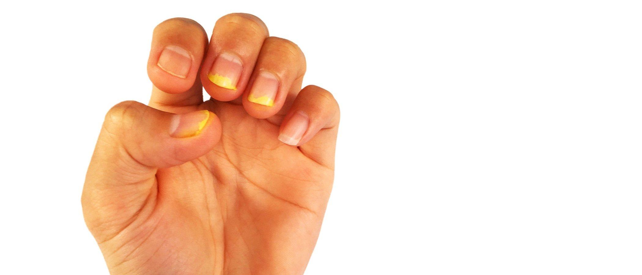 En verano es muy sencillo que se instalen los hongos en las uñas