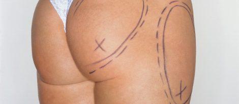 Historia y tipos de Liposucción