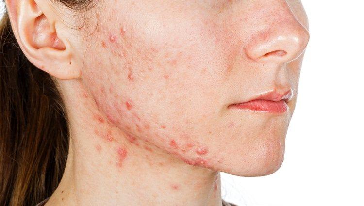 Lesiones en la piel como consecuencia de una foliculitis, una inflamación y posterior infección del poro folicular