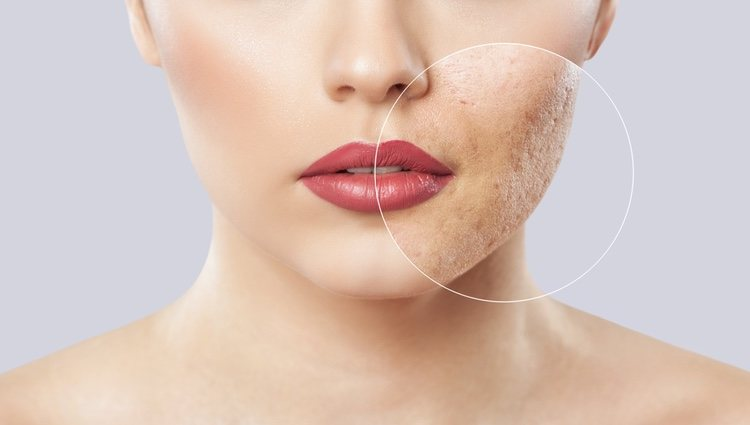 El arroz y el bicarbonato de sodio son algunos de los remedios caseros para tratar el acné