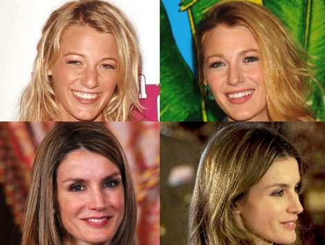 Blake Lively, Sarah Jessica Parker o Elsa Pataky han pasado por el quirófano
