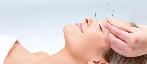 Sesión de acupuntura cosmética