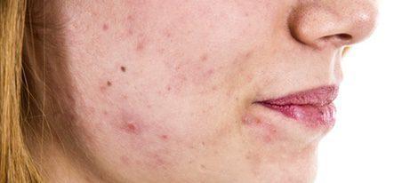 Poros dilatados, exceso secreción sebácea y granitos