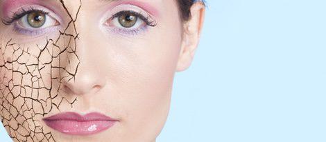 La piel seca es un tipo de piel muy sensible que se caracteriza por falta de agua y grasa