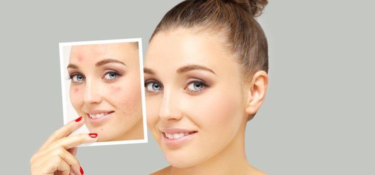 La micropigmentación elimina rojeces dando un aspecto de maquillaje natural al rostro