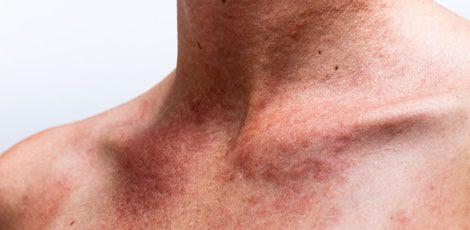 La crema hidratante, imprescindible para tu piel