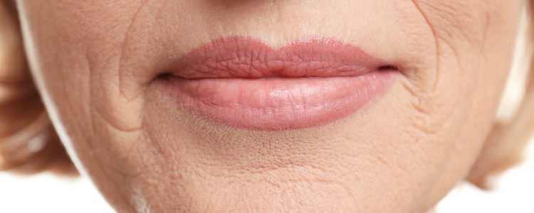 Las arrugas aparecen porque las fibras que componen la piel tienen mucha capacidad para retener agua