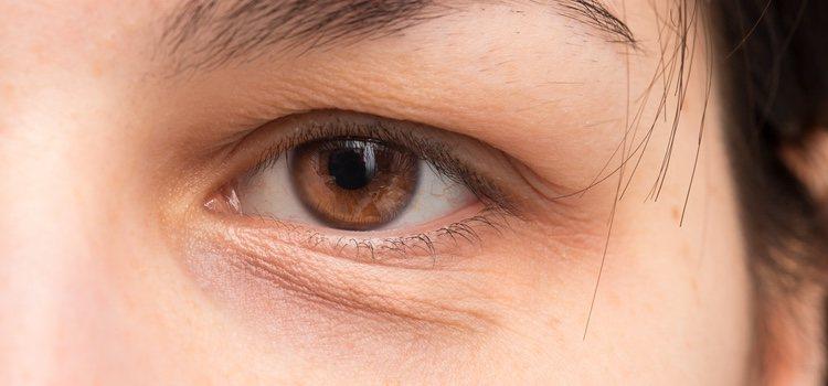 Los ojos hinchados pueden tener varias causas, no solo cansancio