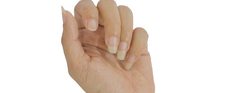 El tabaco es una de las causas de las uñas amarillas