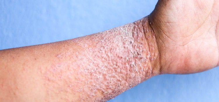 La dermatitis atópica provoca eccemas de este tipo