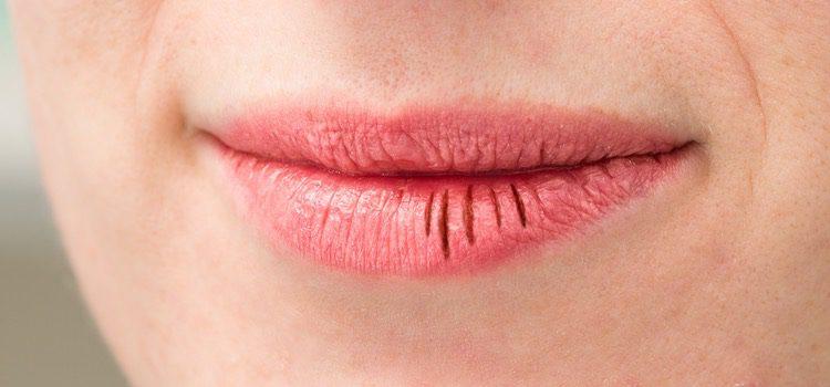 Cuida tus labios en todo momento para no que empeoren
