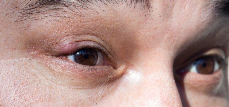 El maquillaje puede causar infecciones en los ojos