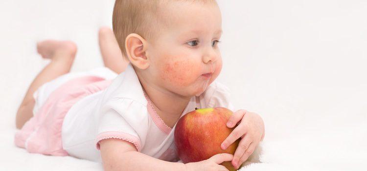 Una de las causas principales del herpes es el contacto directo, por eso es muy frecuente durante los primeros meses de vida